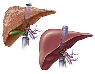 liver transplant facts surgery procedure requirement rgcirc