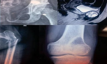Giant Cell Tumour & Pathological Fractures