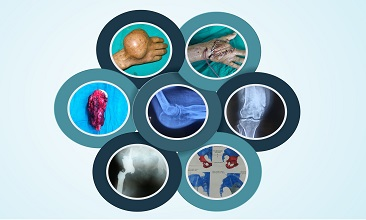 DOA-1st Orthopaedic Oncology CME